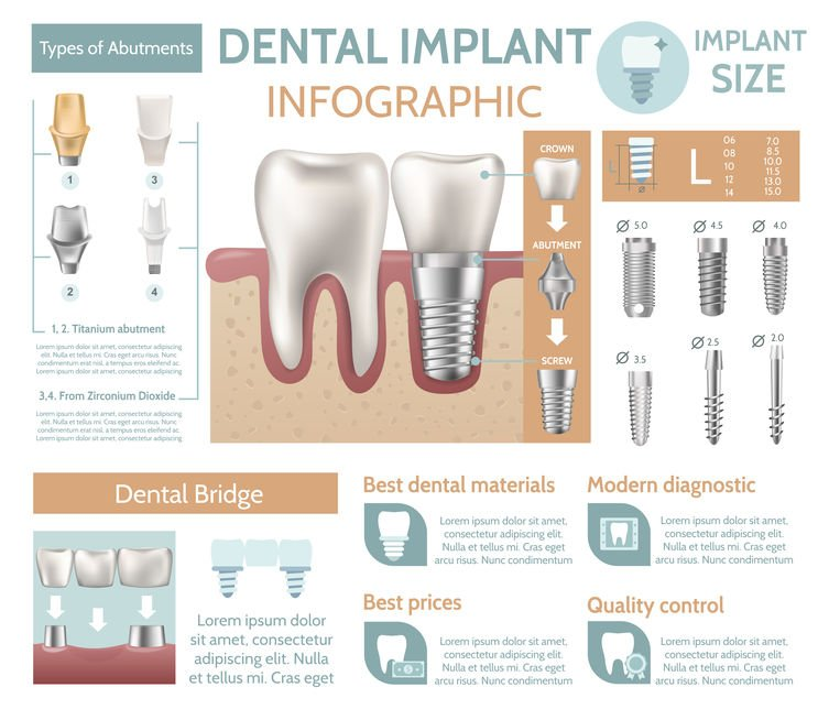 The Power of Dental Implants